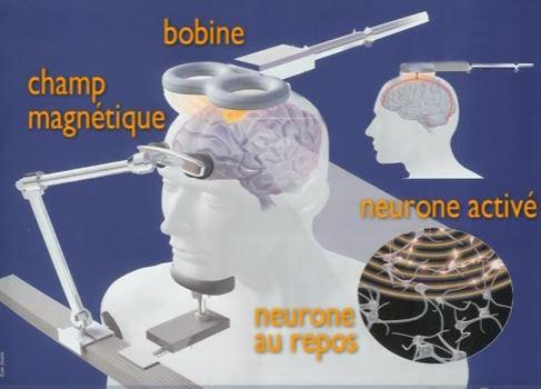 Stimulation magnétique transcrânienne (rTMS) - Pôle Psychiatrie Centre à l'Hôpital de la Conception